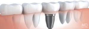 имплант зубов - фото