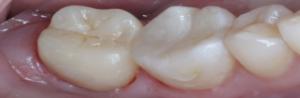 Фото керамической вкладки для зуба